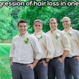 progression of hair loss