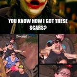 How I Got These Scars